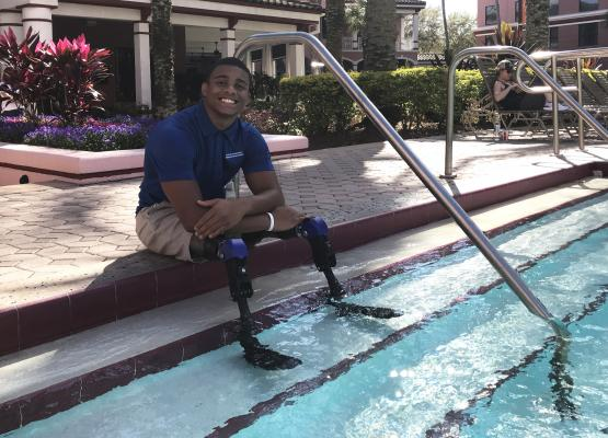 Teen dips prosthetic legs in pool